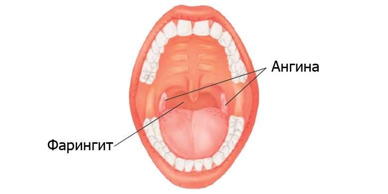 Симптомы и лечения хронического фарингита у взрослых