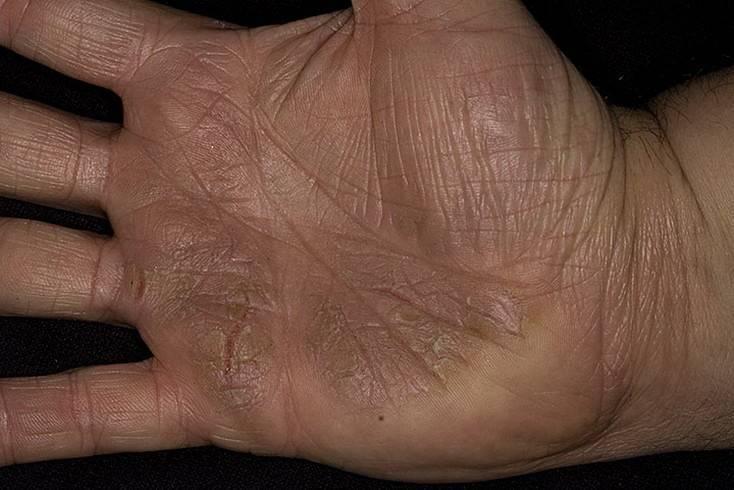 Ладонно-подошвенный псориаз: типы и стратегии лечения