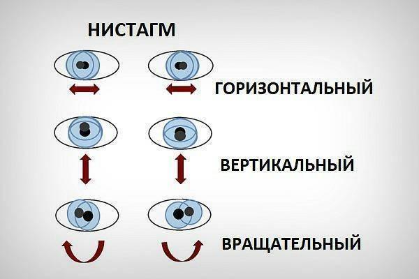 Что такое нистагм глазного яблока