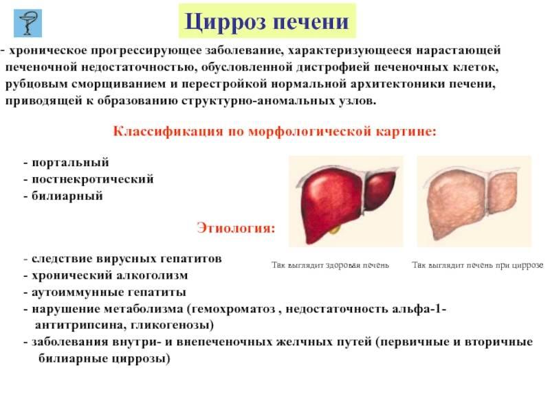 Как передаётся цирроз печени, заразен ли он, передается ли цирроз печени по наследству – kardiobit