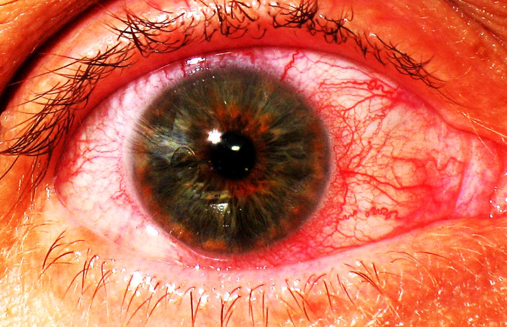 Эписклерит: причины заболевания, симптомы и лечение