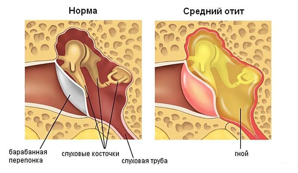Двусторонний отит: классификация, формы заболевания и особенности лечения