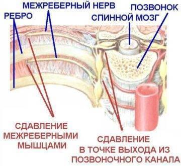 Похоже, что межреберная невралгия (( - межреберная невралгия при беременности форум - запись пользователя лейсан (vileisan) в сообществе многоплодная беременность в категории отеки, давление и прочие недуги - babyblog.ru