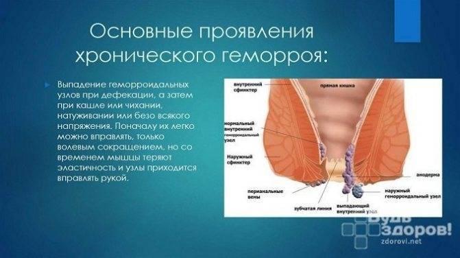 Геморроидальное кровотечение: как лечить кровотечение при геморрое, первая помощь