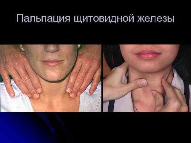 как пальпировать щитовидную железу
