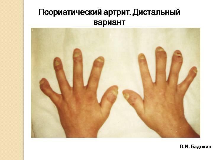артрит при псориазе