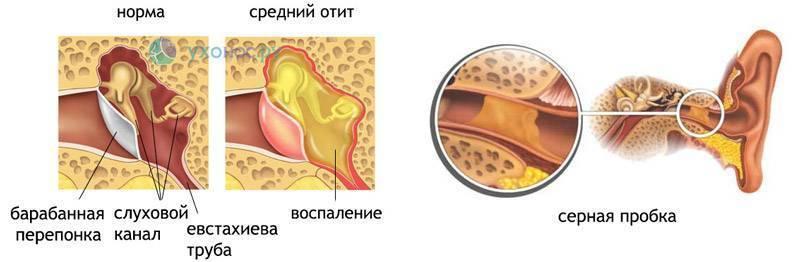 как вытащить воду из уха