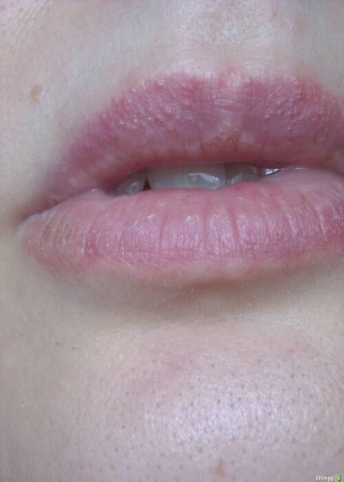 чем лечить дерматит губы