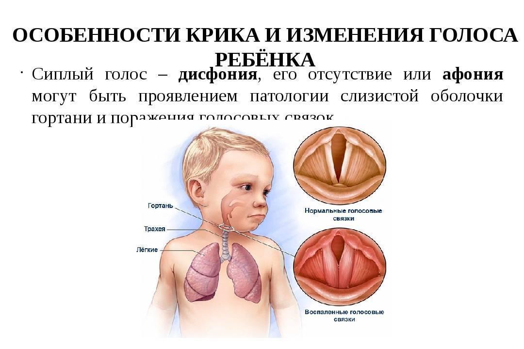 Дисфония, афония: причины, формы, симптомы, лечение