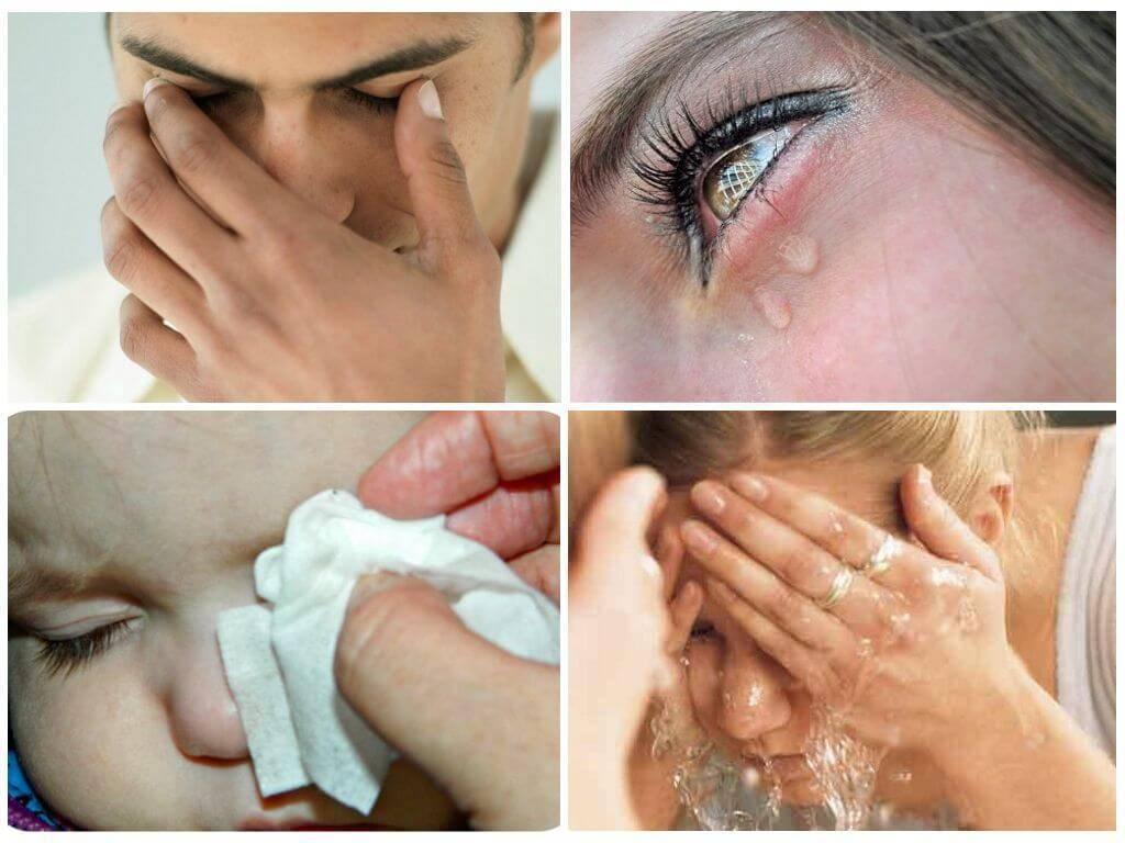 Чем лечить отек и аллергию от укуса мошки