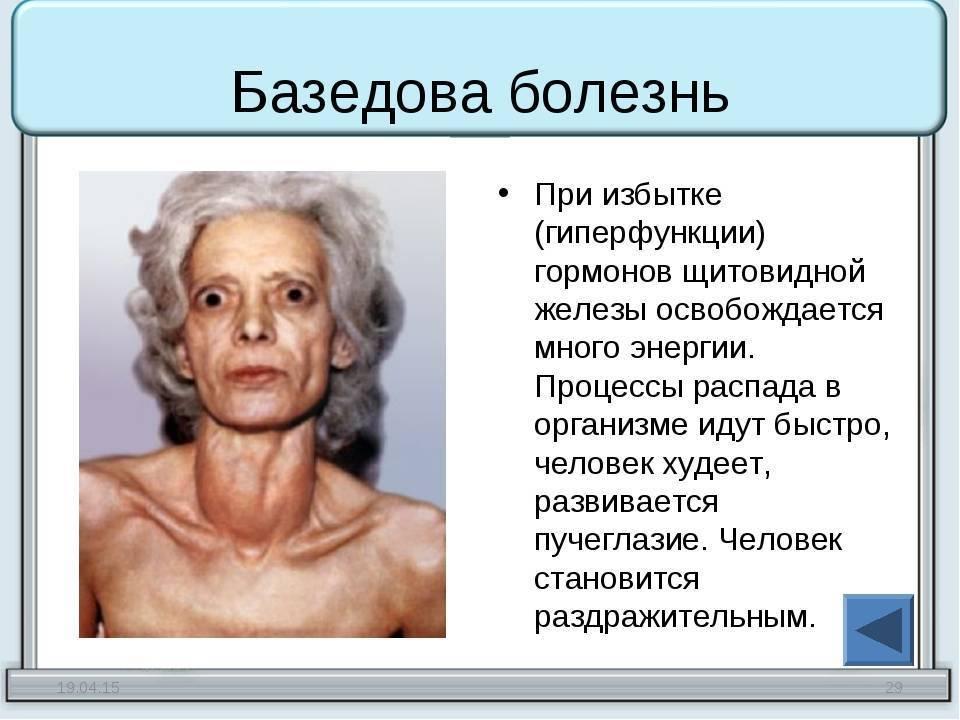 при избытке гормона щитовидной железы развивается заболевание
