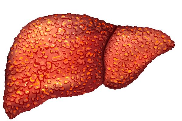 первичный билиарный цирроз печени диагностика