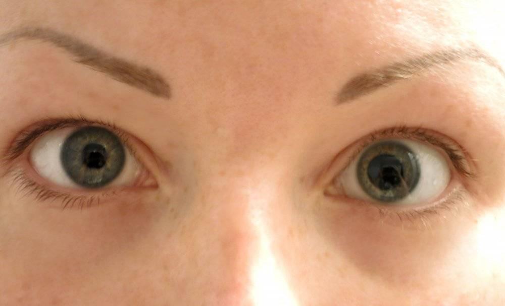 Анизометропия — когда глаза видят по-разному
