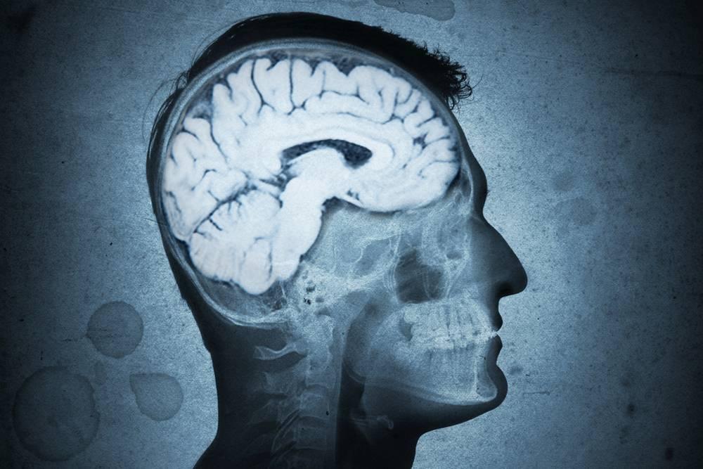 глисты в мозгу