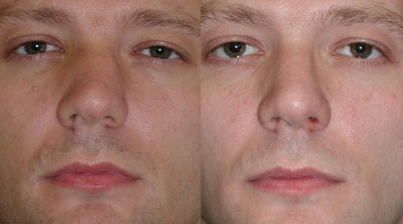 выравнивание носа