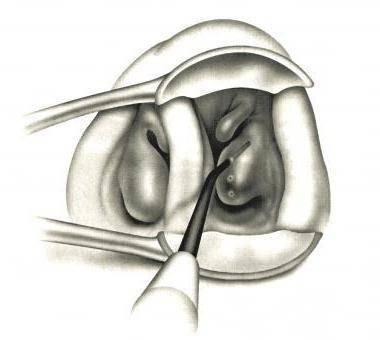 Эндоскопия носа и горла