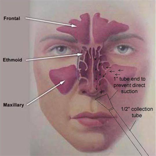 Болит переносица: причины, лечение, профилактика