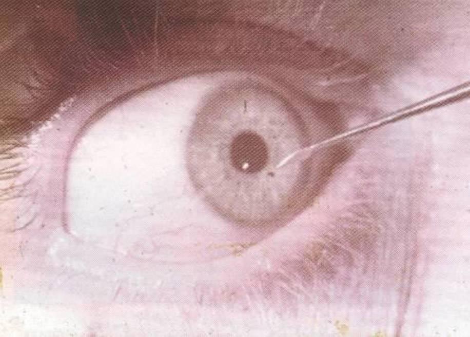 попала соринка в глаз