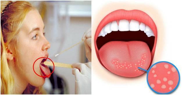 Грибы кандида в горле симптомы