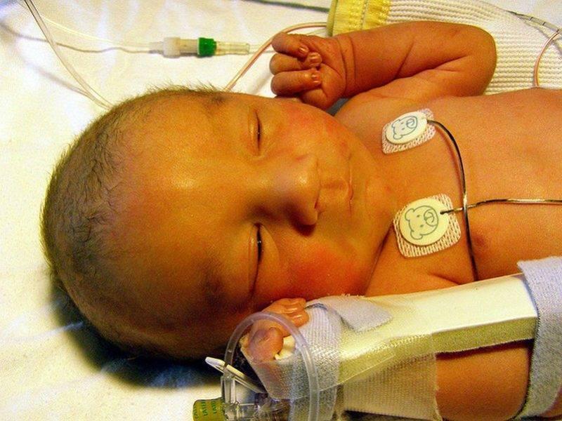 Желтуха у новорожденных – симптомы, лечение, причины, последствия