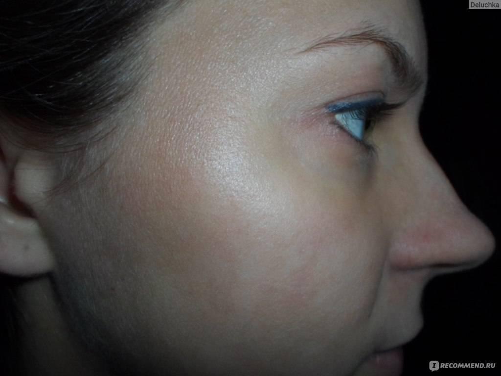 Как эффективно вылечить подкожного клеща на лице
