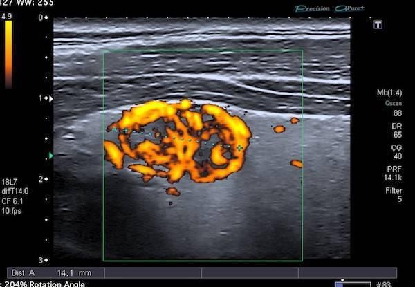 Кровоток в узле щитовидной железы что это такое