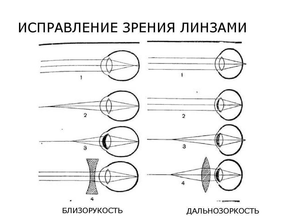Линзы для дальнозоркости: бывают ли с плюсом, какие подходят при возрастной коррекции зрения, есть контактные плюсовые диоптрии