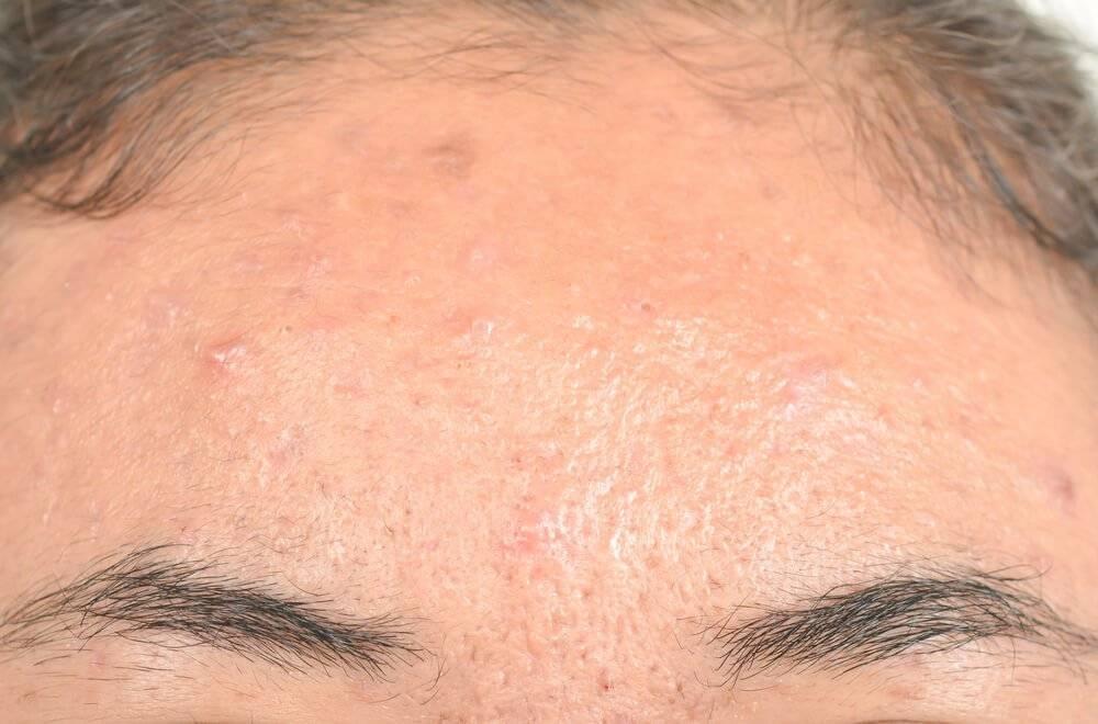 себорейный дерматит на лице лечение народными средствами