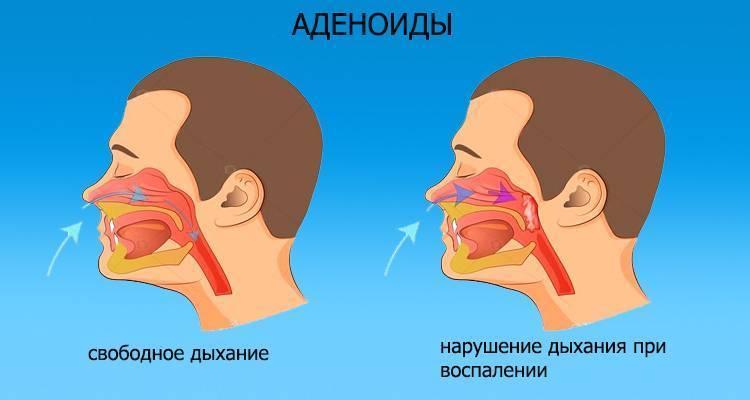 Почему попеременно закладывает то одну, то другую ноздрю