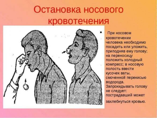 Кровотечение из носа не останавливается