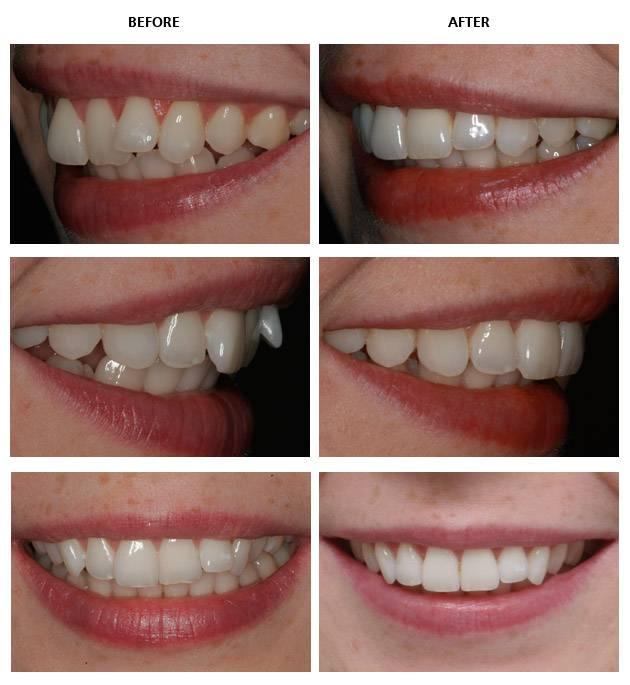 способы выровнять зубы
