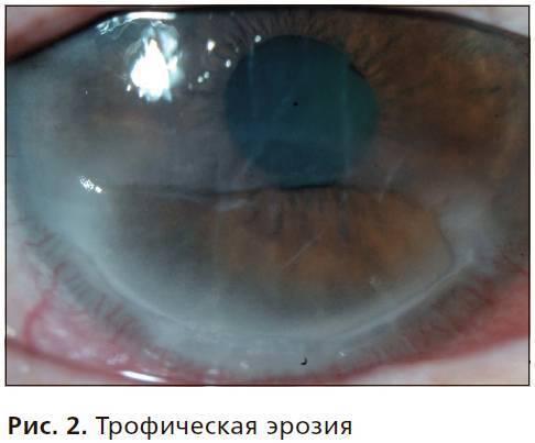 Эрозия роговицы глаза: травматическая и рецидивирующая