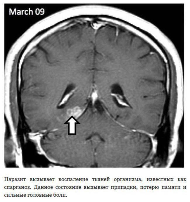 Симптомы и признаки появления мозговых паразитов, лечение