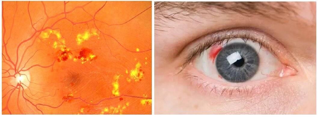Куриная слепота - виды, причины, симптомы, диагностика и лечение
