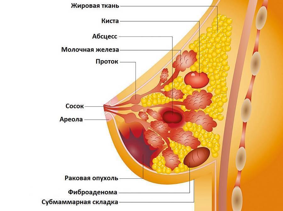 болезни молочной железы симптомы