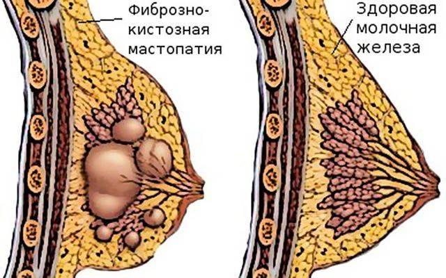 болит ли киста молочной железы