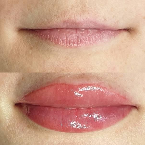 Чем лечить герпес на губах. быстрое избавление от герпеса на губах