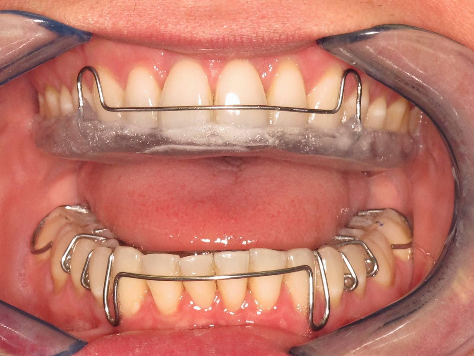 Починка, коррекция несъемного ретейнера (внутрикаб.) в москве - цены от 400 рублей, адреса стоматологий, отзывы пациентов