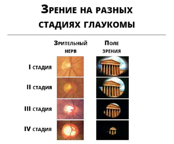 классификация глаукомы по стадиям