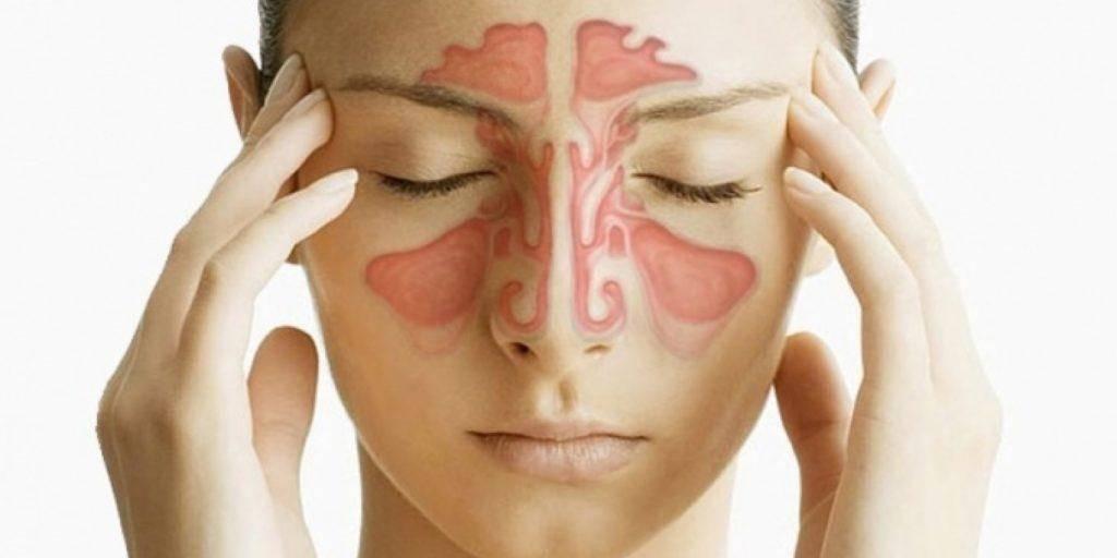 Этмоидит - формы, симптомы и лечение у взрослых, препараты   здрав-лаб