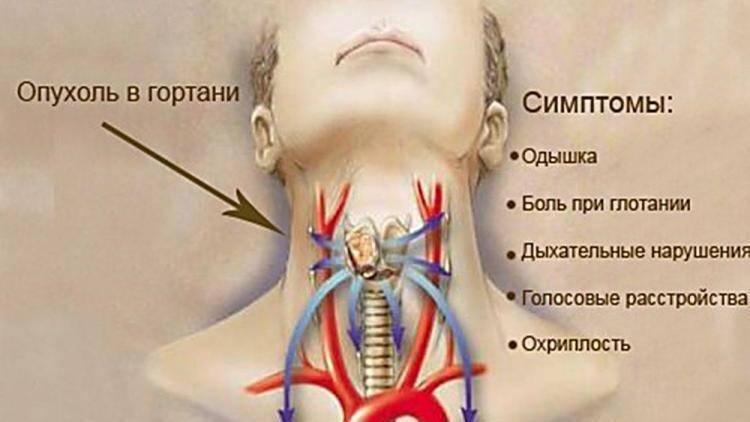 сколько живут с раком горла