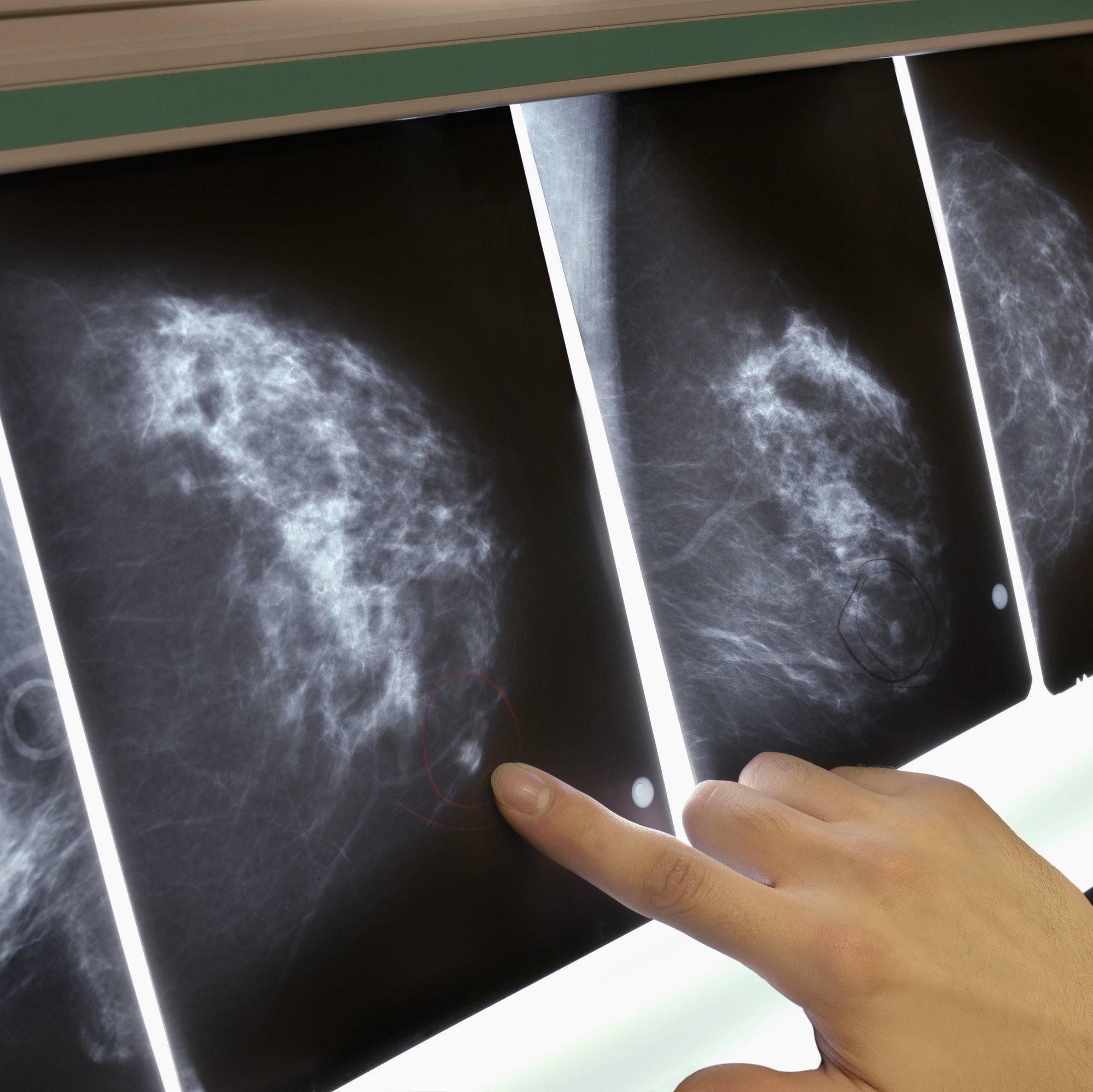 чем отличается маммография от узи