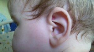 Внутри ушка у ребенка красное. что делать, если у ребенка покраснели и опухли уши