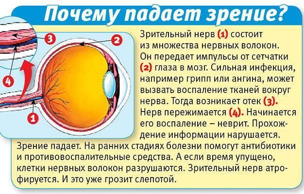 Падает зрение. что делать?