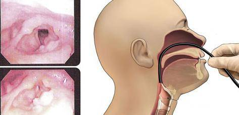 плоскоклеточный рак гортани лечение народными средствами