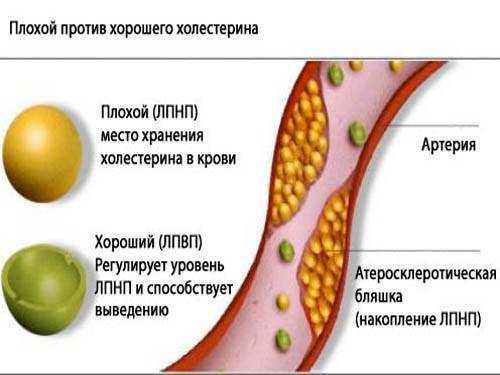 побочный эффект холестерина