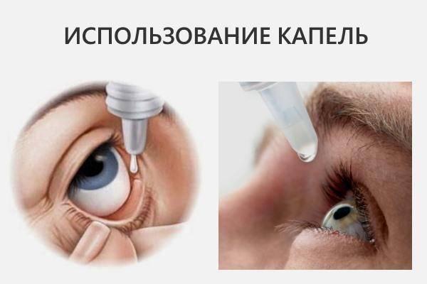Как вылечить глаукому - wikihow