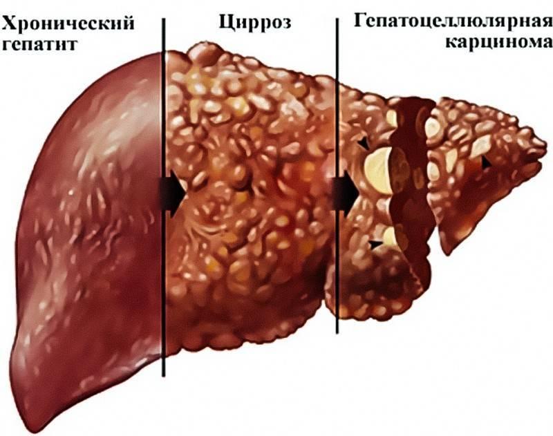 хронический гепатит с симптомы