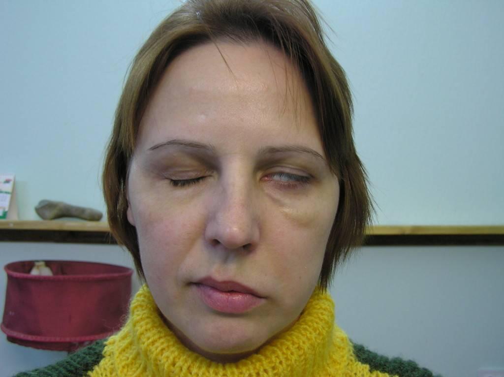 Невралгия лицевого нерва: причины, симптомы и лечение