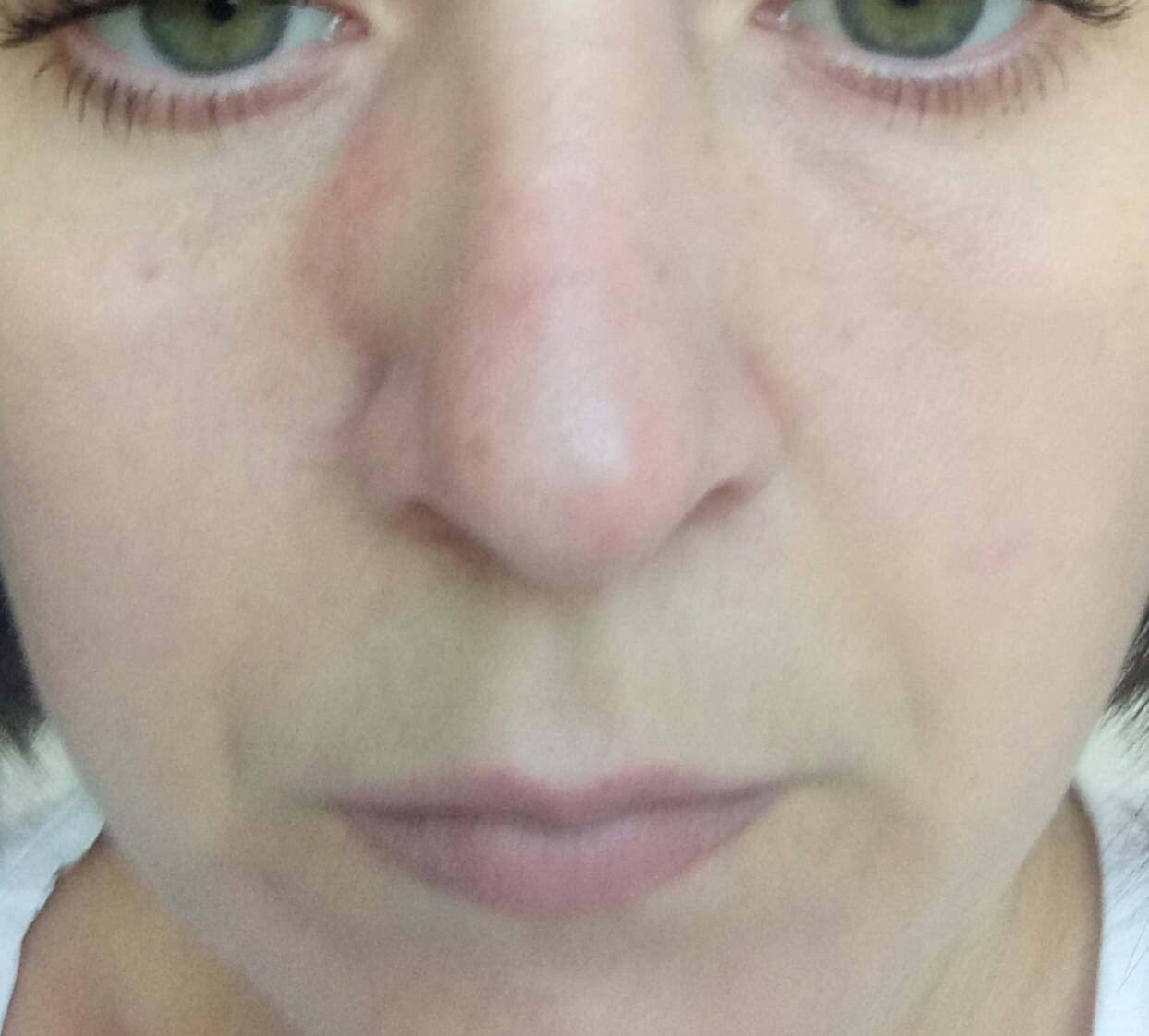 опухоль носа симптомы